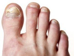 Listerine Foot Soak for Toenail Fungus