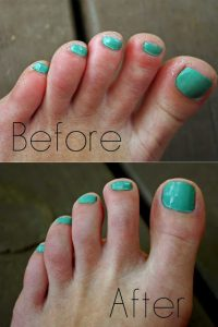 Listerine Vinegar Foot Soak Before-After