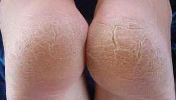 Dry Feet Skin Remedies