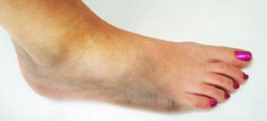 Foot Care for Diabetics