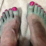 Listerine Foot Soak Side Effects