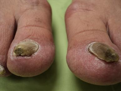 Athlete's foot - Wikipedia