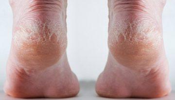 Vinegar Foot Soak for Cracked Heels