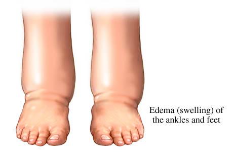 Best Natural Foot Soak