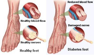Vinegar for Feet Diabetes