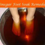Vinegar Foot Soak Remedies