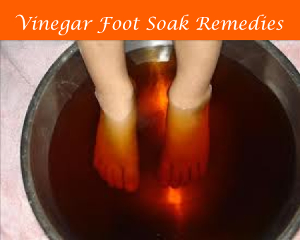 Vinegar Foot Soak Remedies