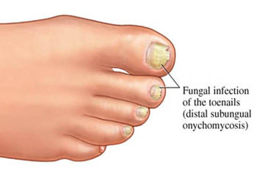 Подскажите как вылечить грибок на ногтях