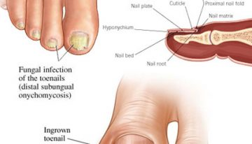 Causes of Toenail Fungus