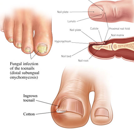 How do you get rid of nail fungus in shoes 2014