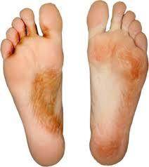 Vinegar for Athlete Feet Treatment