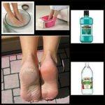 Vinegar and Listerine Foot Soak
