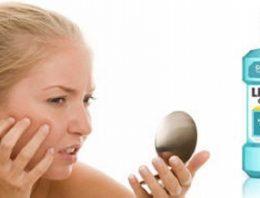 Listerine As An Acne Treatment
