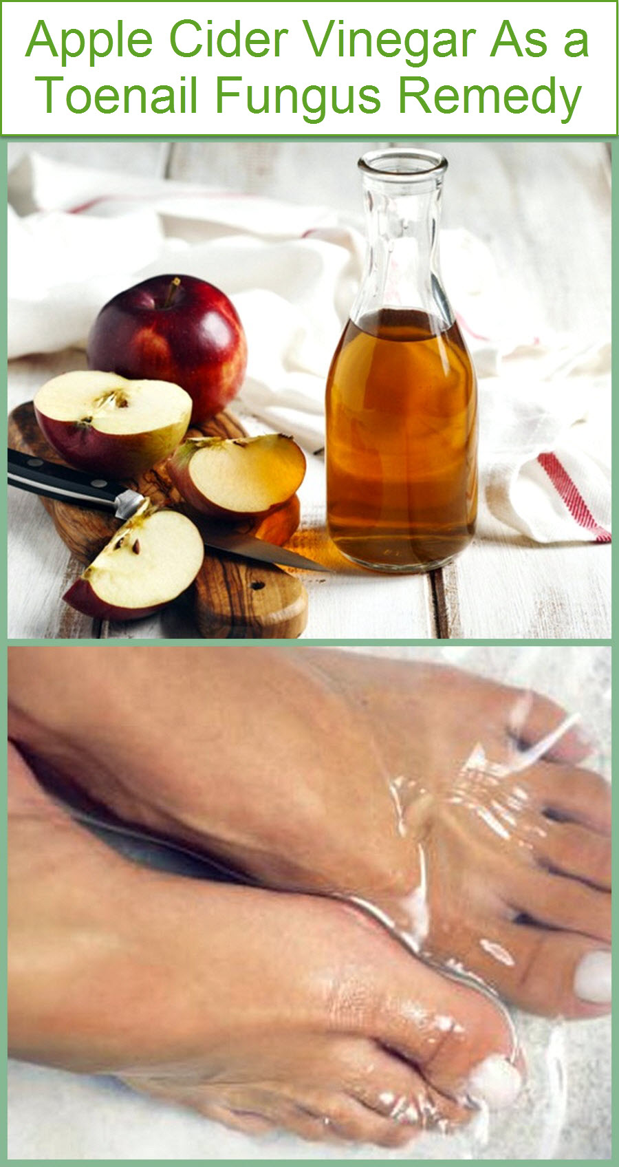 apple-cider-vinegar-as-a-toenail-fungus-remedy