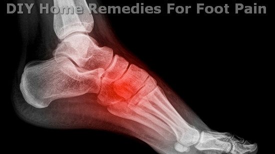 DIY Home Remedies For Foot Pain | Listerine Foot Soak