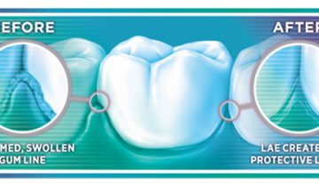 Listerine for Teeth Protection