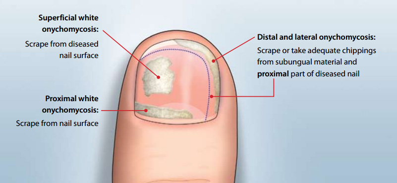 Symptoms of Toenail Fungus