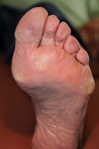 Remove Calluses On Feet Naturally