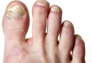 Listerine Foot Soak for Toenail Fungus