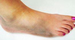 Foot Care For Diabetics