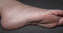 Listerine Foot Soak Recipe for Dry Skin