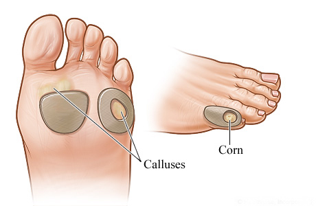 How To Remove Fungus From Feet Naturally