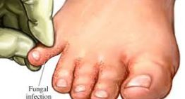 Vinegar for Feet Fungus