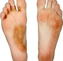 Vinegar for Athlete Feet Treatment