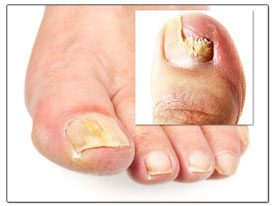 Precautions for Toenail Fungus