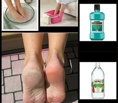 Vinegar and Listerine Foot Soak
