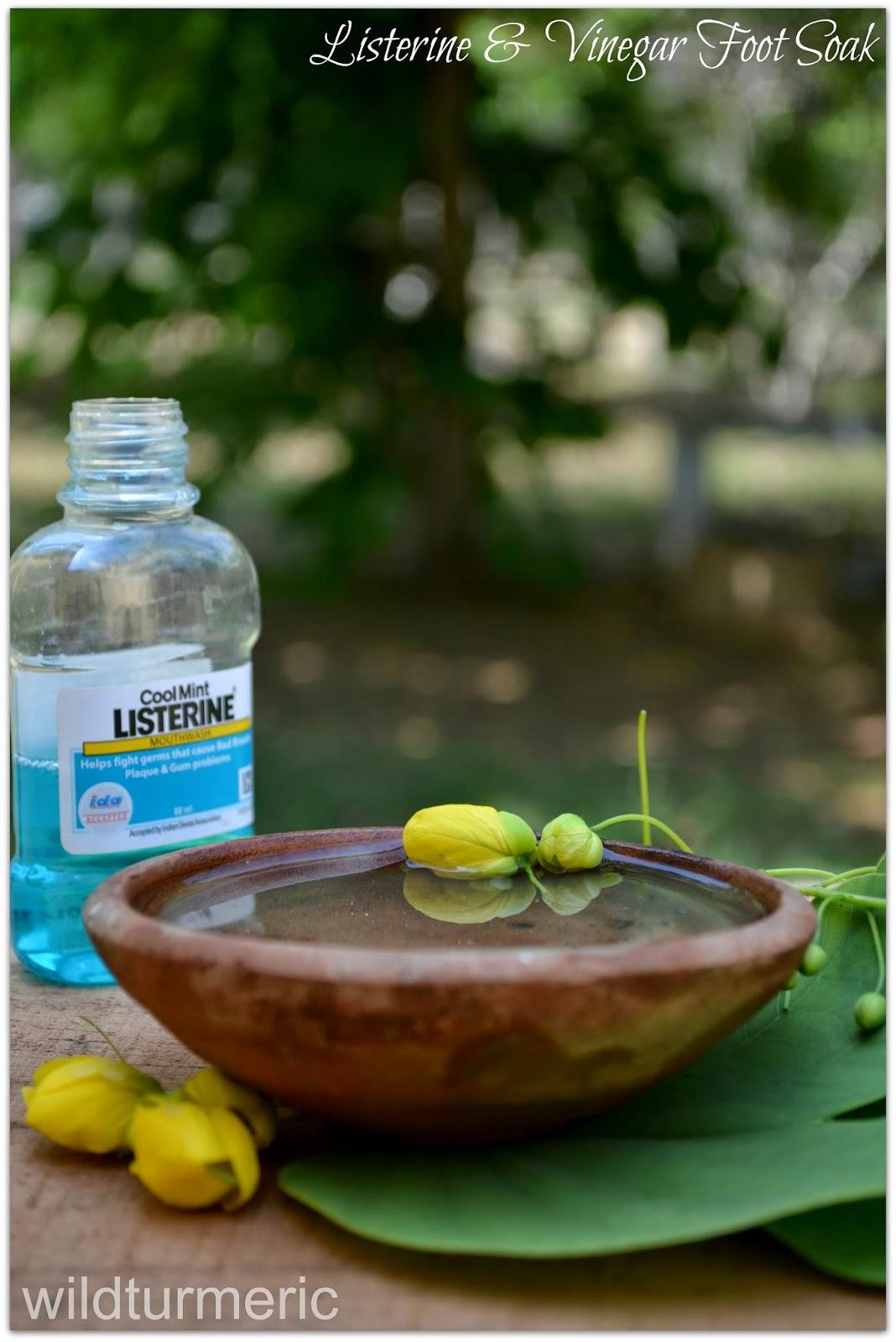 Listerine and Vinegar Treatment for Feet