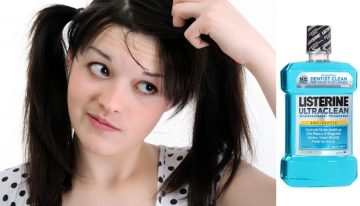 Get Rid Of Dandruff Using Listerine