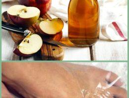 Apple Cider Vinegar As a Toenail Fungus Remedy
