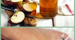 Apple Cider Vinegar As a Toenail Fungus Remedy