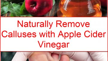 Naturally Remove Calluses with Apple Cider Vinegar