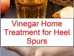 Vinegar Home Treatment for Heel Spurs