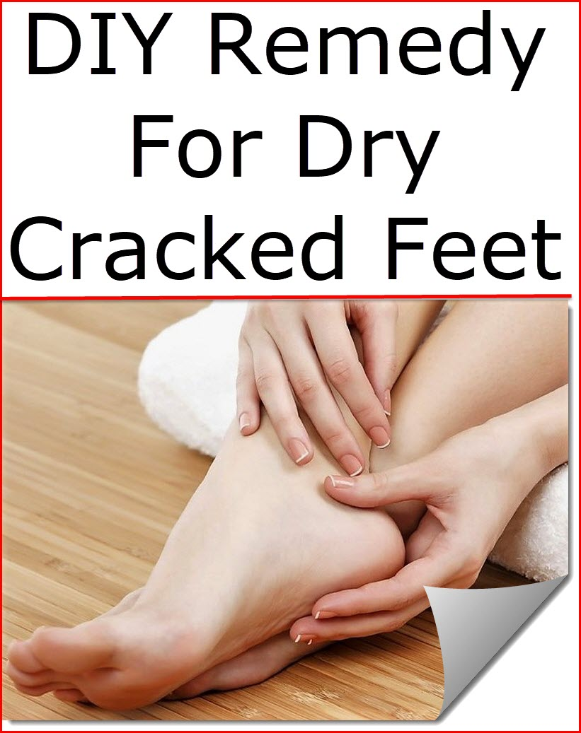Foot Care / Remedies cover image